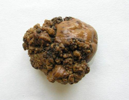 Картофель с раком